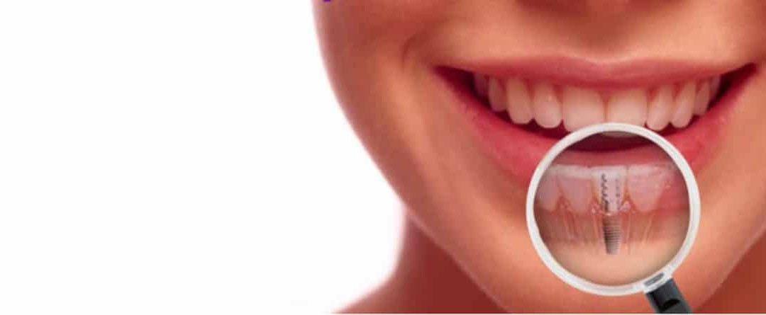 Periodontal Disease and Dental Implant Failure