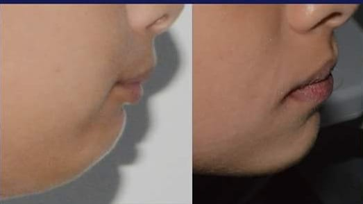 Before & After side face #1