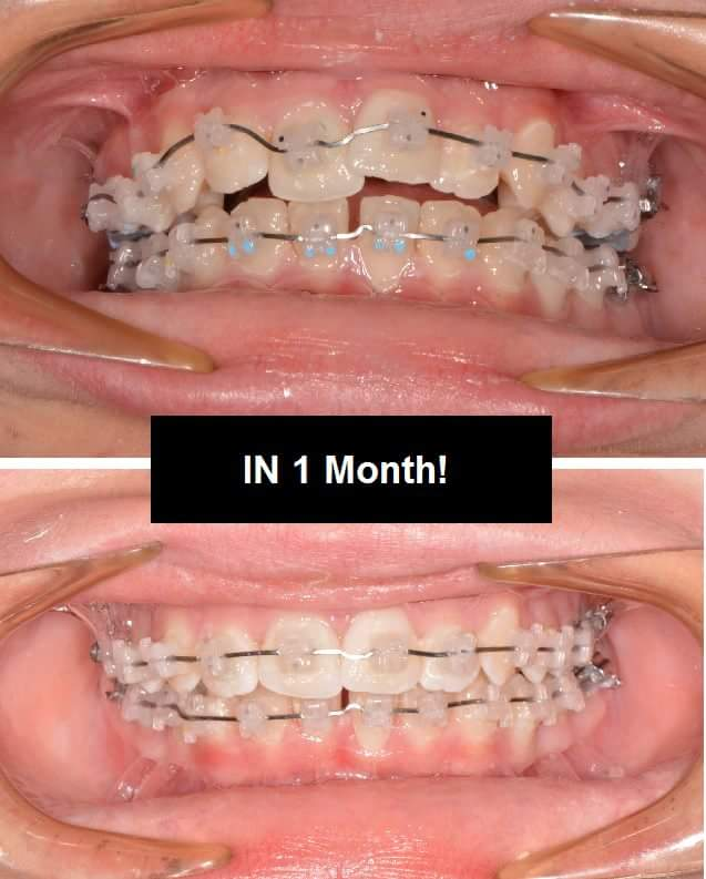 Before & After Teeth Images #2